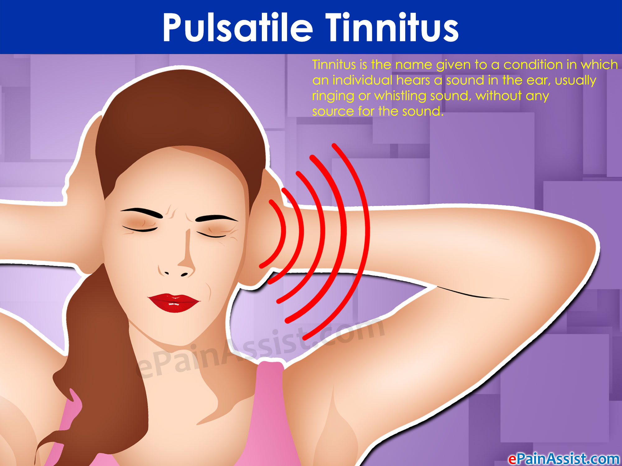 The cause of pulsatile tinnitus