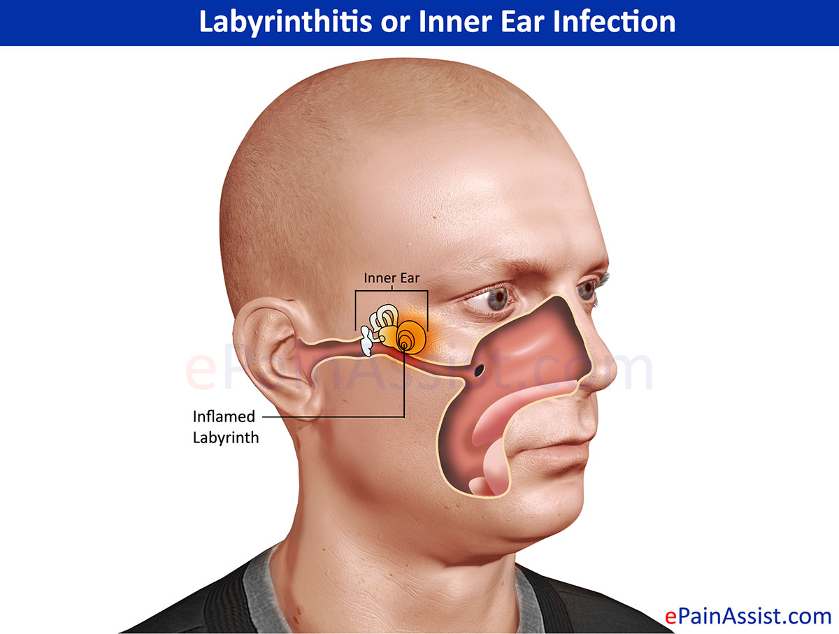 Ear infection and Treatment